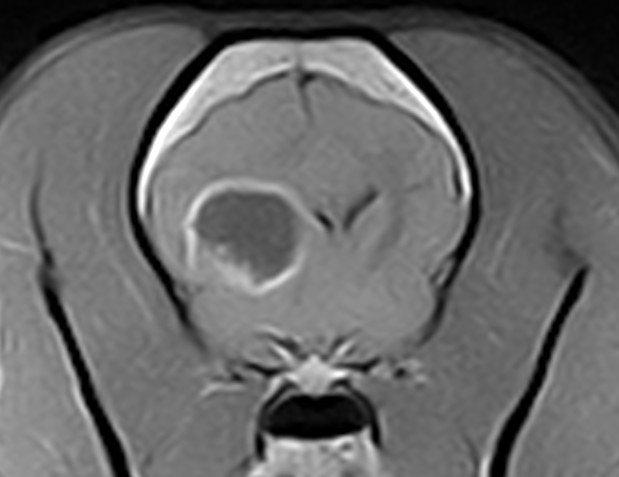 IRM Radio Gliome transverse