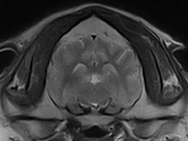 IRM Myosite
