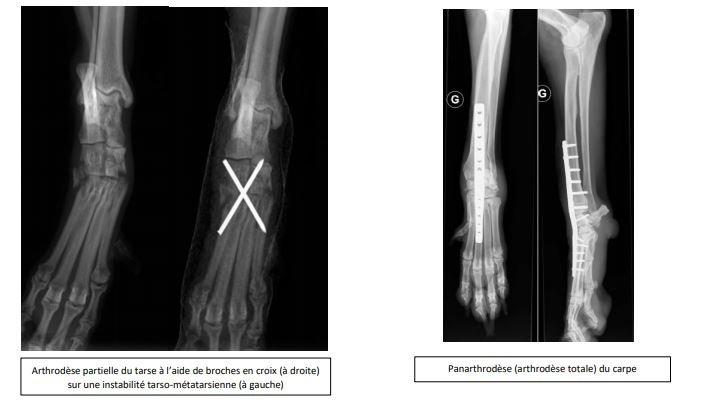 Arthrodèse partielle du tarse à l'aide de broches en croix (à droite) sur une instabilité tarso-métatarsienne (à gauche) et Panarthrodèse (arthrodèse totale) du carpe