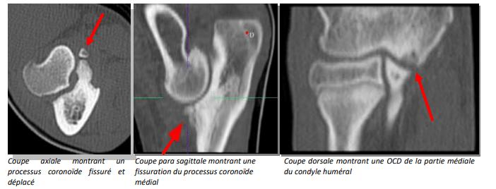Scanner d'une dysplasie du coude