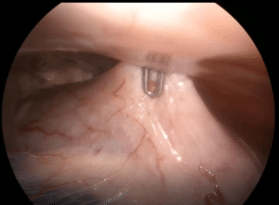 Vue par opératoire d'une colopexie sous coelioscopie