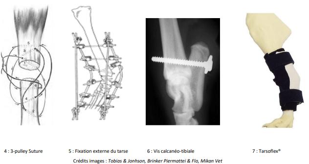 Fixation des tendons d'achilles