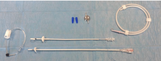 Un SUB (Subcutaneous Ureteral ByPass) traduit en français par « court circuit urétéral sous cutané