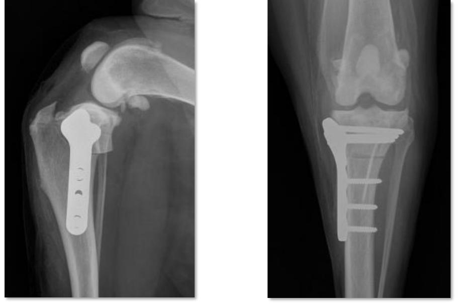 La TPLO est une chirurgie osseuse pratiquée sur le genou des chiens