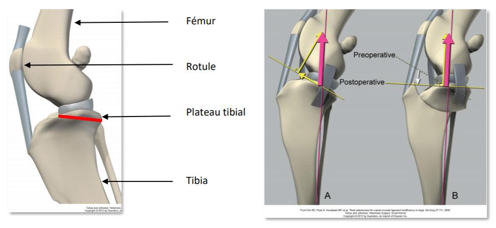 e, la TPLO transforme le genou canin en une articulation qui n'a plus besoin de ligament croisé antérieur pour être stable, et ce de façon définitive.