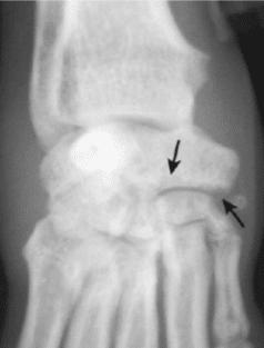 Lésions érosives (flèches) dans l'articulation du carpe d'un chien