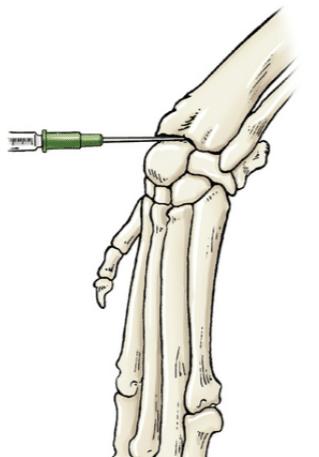 Ponction articulaire du carpe