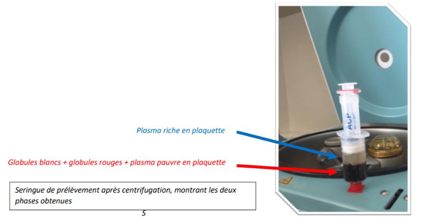 Seringue de prélèvement après centrifugation, montrant les deux phases obtenues